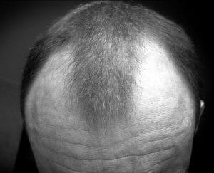 Androgene alopecia