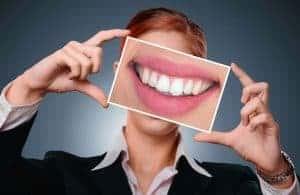 witte glimlach